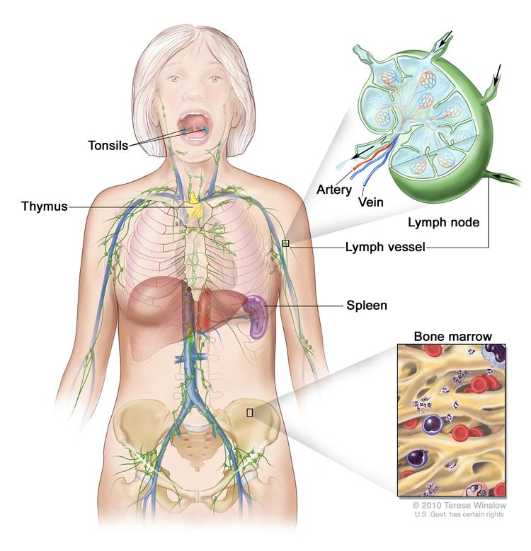 Lymph system; drawing shows the lymph vessels and lymph organs, including the lymph nodes, tonsils, thymus, spleen, and bone marrow.  One inset shows the inside structure of a lymph node and the attached lymph vessels with arrows showing how the lymph (clear fluid) moves into and out of the lymph node. Another inset shows a close up of bone marrow with blood cells.