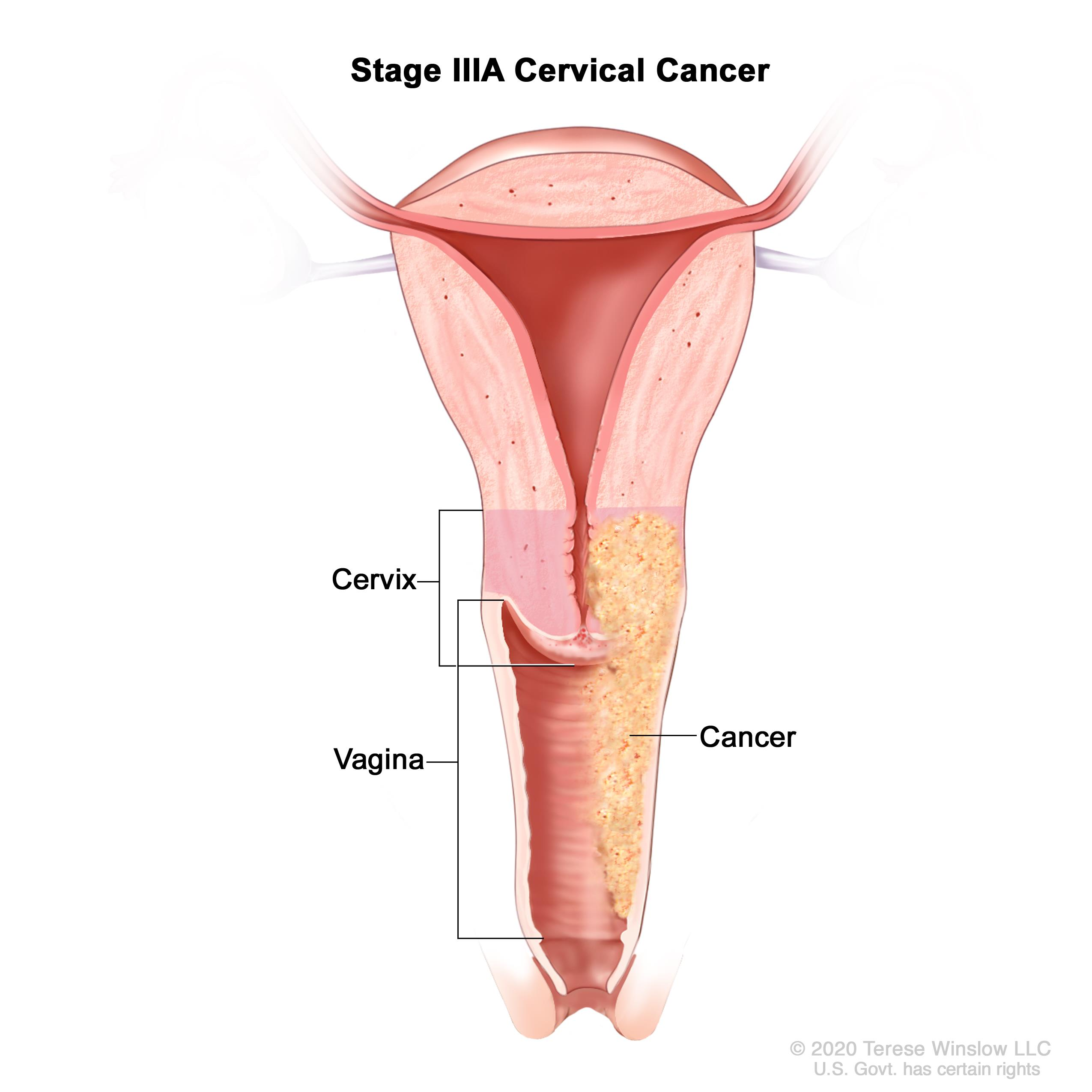 Stage IIIA cervical cancer; drawing shows a cross-section of the cervix and vagina. Cancer is shown in the cervix and in the full length of the vagina.
