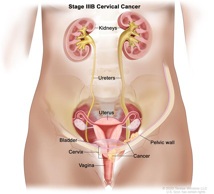Cervical Cancer: Pictures of Cervical Cancer Stages