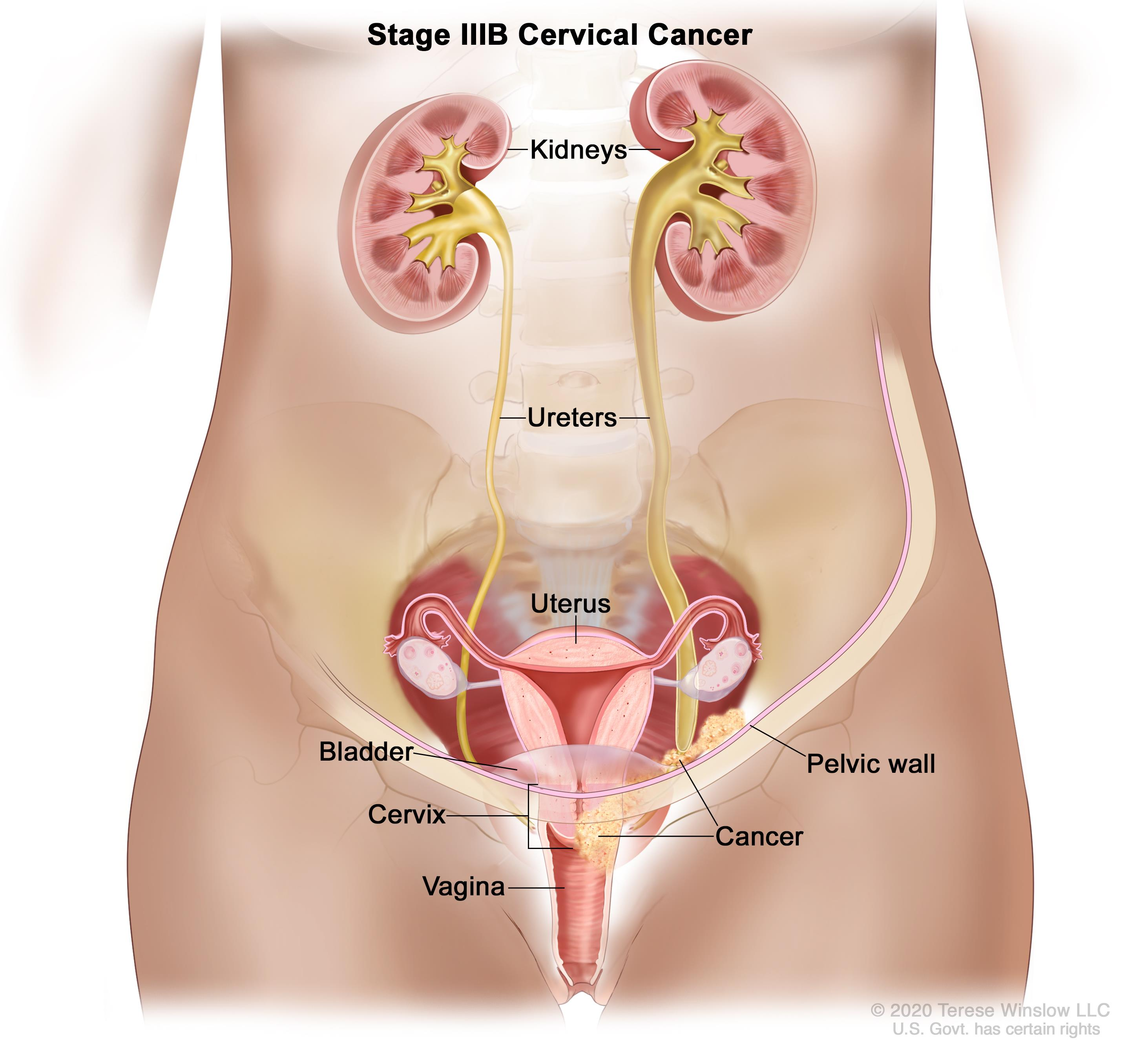 Cervical Cancer Treatment Pdqhealth Professional Version