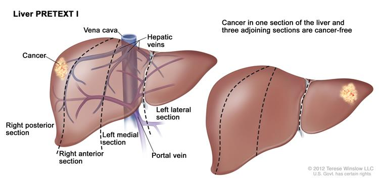 Liver PRETEXT I; drawing shows two livers. Dotted lines divide each liver into four vertical sections of about the same size.  In the first liver, cancer is shown in the section on the far left.  In the second liver, cancer is shown in the section on the far right.