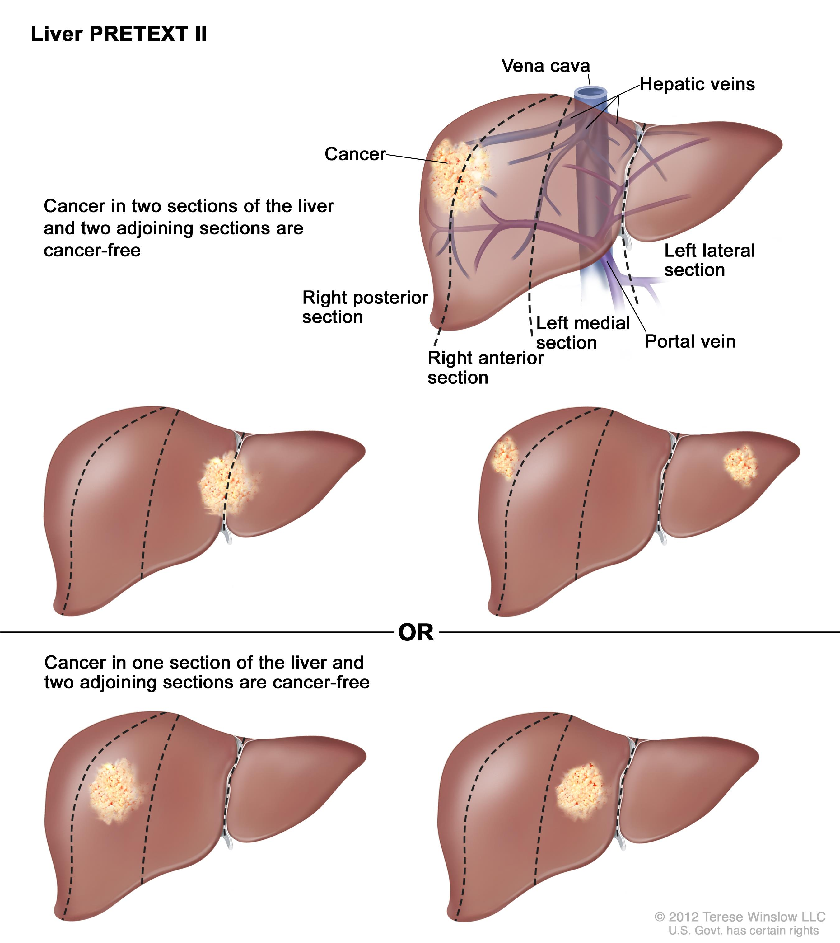 Liver PRETEXT II; drawing shows five livers. Dotted lines divide each liver into four vertical sections that are about the same size. In the first liver, cancer is shown in the two sections on the left.  In the second liver, cancer is shown in the two sections on the right. In the third liver, cancer is shown in the far left and far right sections. In the fourth liver, cancer is shown in the second section from the left.  In the fifth liver, cancer is shown in the second section from the right.