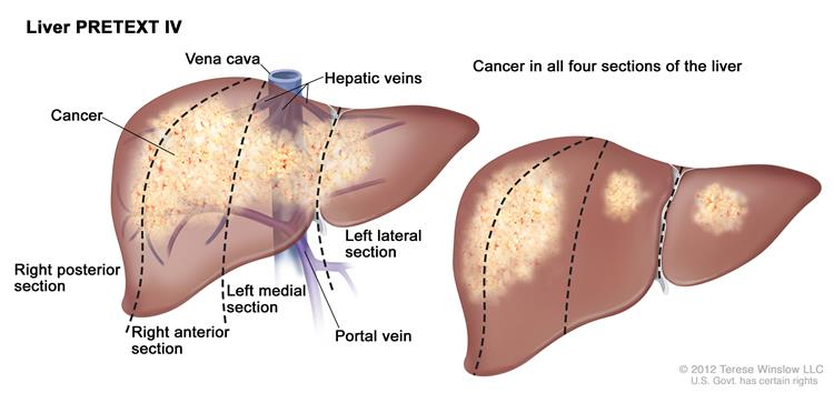 Liver PRETEXT IV; drawing shows two livers. Dotted lines divide each liver into four vertical sectors that are about the same size. In the first liver, cancer is shown across all four sections. In the second liver, cancer is shown in the two sections on the left and spots of cancer are shown in the two sections on the right.