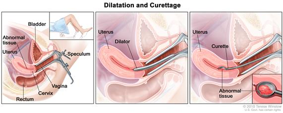 Dilatation and curettage (D and C). Three-panel drawing showing a side view of the female reproductive anatomy during a D and C procedure. The first panel shows a speculum widening the opening of the vagina. The cervix, uterus with abnormal tissue, bladder, and rectum are also shown; an inset shows the lower half of a woman covered by a drape on an exam table with her legs apart  and her feet in stirrups. The middle panel shows the uterus and a dilator inserted through the vagina into the cervix. The third panel shows a curette scraping out abnormal tissue from the uterus; an inset shows a close up of the curette with the abnormal tissue in it.