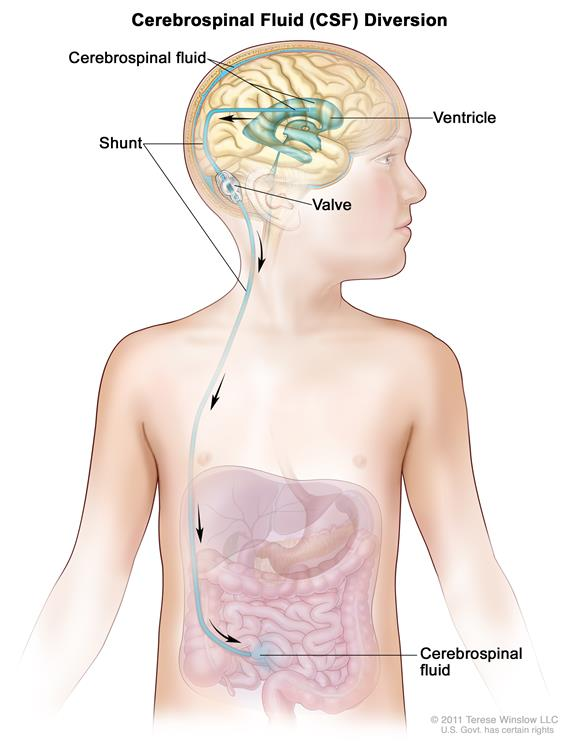 Cerebrospinal fluid (CSF) diversion; drawing shows extra CSF flowing through a tube (shunt) from a ventricle in the brain into the abdomen. The shunt goes from the ventricle, under the skin in the neck and chest, and into the abdomen. Also shown is a valve that controls the flow of CSF.