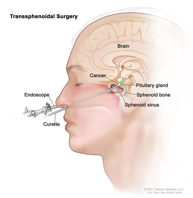 Transsphenoidal surgery; drawing shows an endoscope and a curette inserted through the nose and sphenoid sinus to remove cancer from the pituitary gland. The sphenoid bone is also shown.