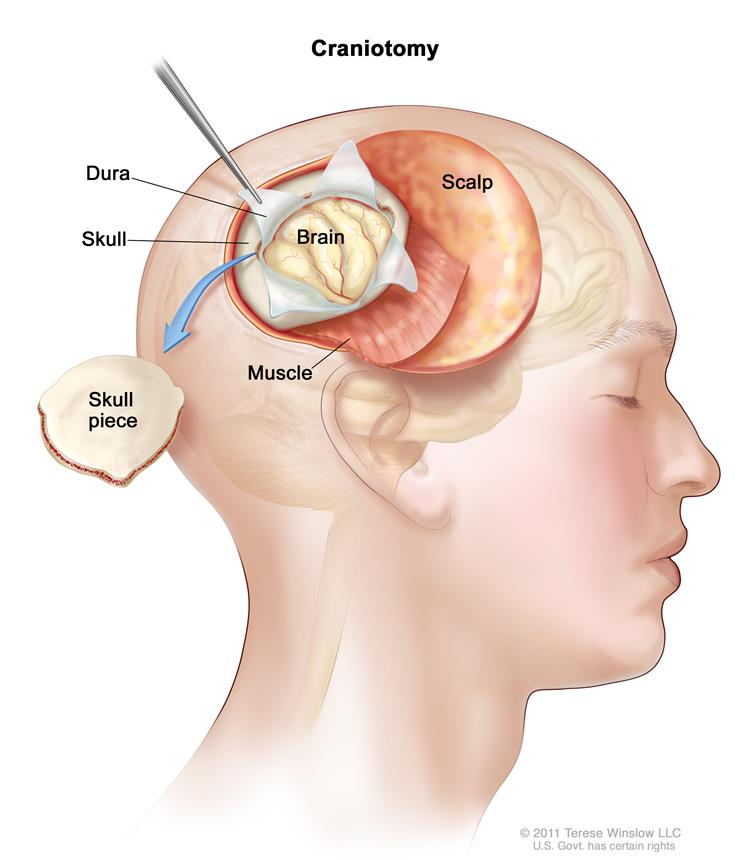 Drawing of a craniotomy showing a section of the scalp that has been pulled back to remove a piece of the skull; the dura covering the brain has been opened to expose the brain. The layer of muscle under the scalp is also shown.