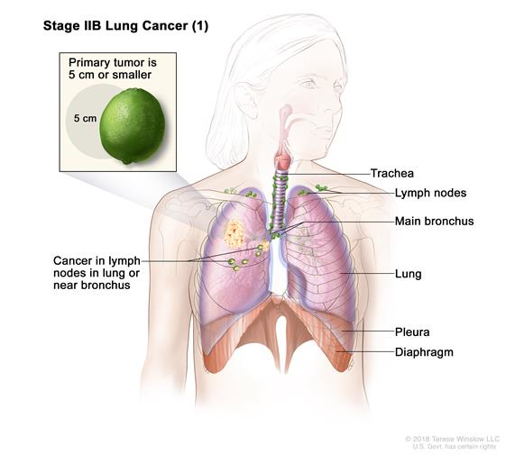 Two-panel drawing of stage IIB non-small cell lung cancer. First panel shows cancer (more than 5 cm but not more than 7 cm), and cancer in the right main bronchus and lymph nodes; also shown are the trachea, bronchioles, and diaphragm. Inset shows cancer that has spread from the lung to the innermost layer of the lung lining; a rib is also shown. Second panel shows cancer (more than 7 cm), and cancer in the left main bronchus; also shown are the trachea, lymph nodes, bronchioles, and diaphragm. Top inset shows cancer that has spread from the lung through the lung lining and chest wall lining into the chest wall; a rib is also shown.  Bottom inset shows the heart and cancer that has spread from the lung into the membrane around the heart.