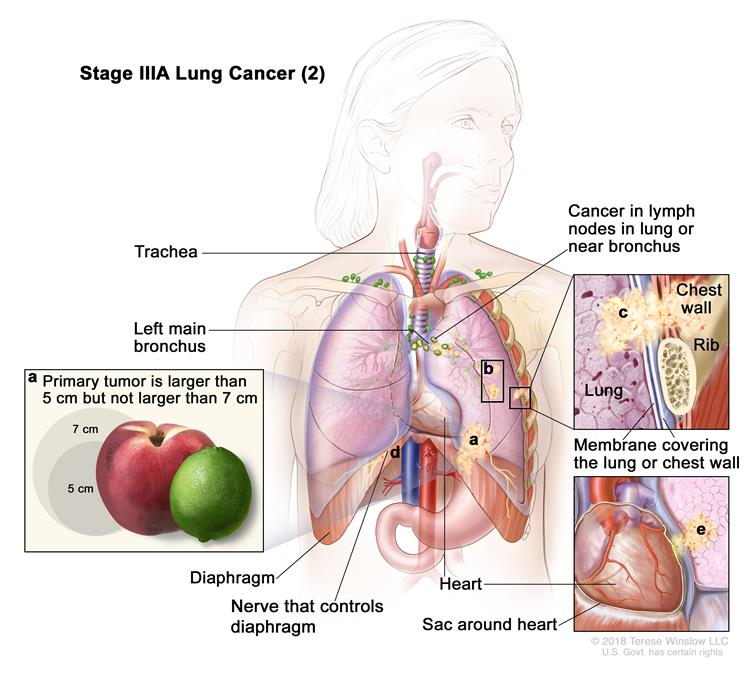 Stage IIIA lung cancer (2); drawing shows (a) a primary tumor (larger than 5 cm but not larger than 7 cm) in the left lung and cancer in lymph nodes in the lung or near the bronchus on the same side of the chest as the primary tumor. Also shown is (b) separate tumors in the same lobe of the lung as the primary tumor and cancer that has spread to (c) the chest wall and the membranes covering the lung and chest wall (top right inset); (d) the nerve that controls the diaphragm; and (e) the sac around the heart (bottom right inset).  The trachea, left main bronchus, diaphragm, heart, and a rib (top right inset) are also shown.