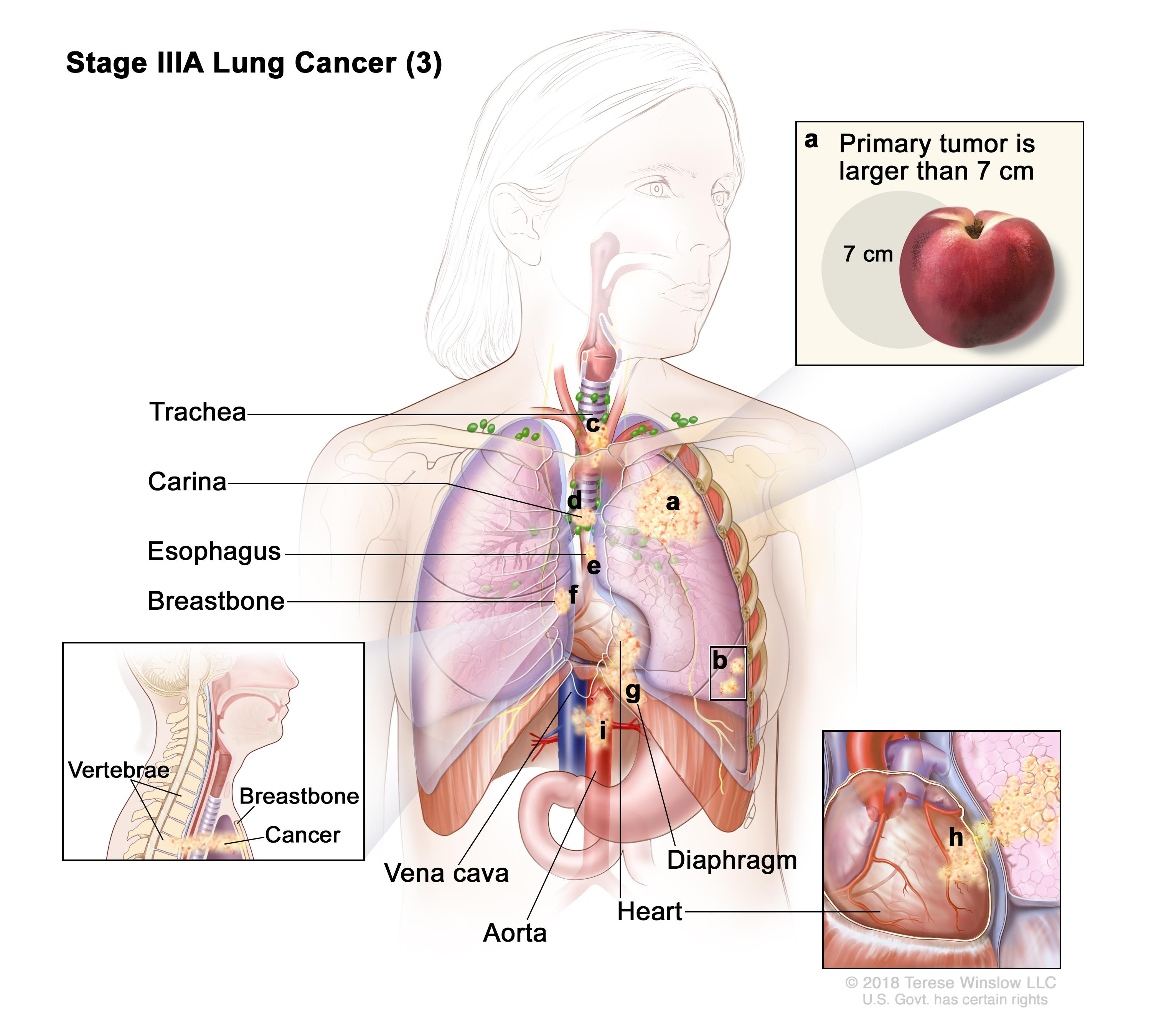Non small cell lung cancer treatment pdqpatient version enlarge ccuart Images