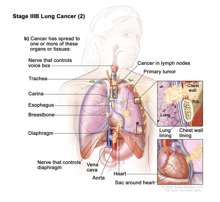 Stage IIIB lung cancer (2); drawing shows a primary tumor in the left lung and (a) a separate tumor in a different lobe of the lung with the primary tumor. Also shown is cancer in lymph nodes on the same side of the chest as the primary tumor. The lymph nodes with cancer are around the trachea or where the trachea divides into the bronchi. Also shown is (b) cancer that has spread to the following: the chest wall and the lining of the chest wall and lung, the nerve that controls the voice box, the trachea, the carina, the esophagus, the breastbone, the diaphragm, the nerve that controls the diaphragm, the aorta and vena cava, the heart, and the sac around the heart.