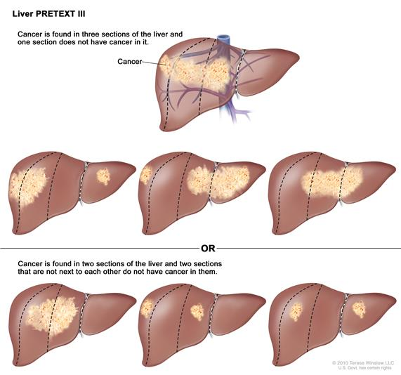 Liver PRETEXT Stage 3; drawing shows seven livers. Dotted lines divide each liver into four vertical sections that are about the same size. In the first liver, cancer is shown in three sections on the left.  In the second liver, cancer is shown in the two sections on the left and the section on the far right. In the third liver, cancer is shown in the section on the far left and the two sections on the right.  In the fourth liver, cancer is shown in three sections on the right.  In the fifth liver, cancer is shown in the two middle sections.  In the sixth liver, cancer is shown in the section on the far left and the second section from the right.  In the seventh liver, cancer is shown in the section on the far right and the second section from the left.