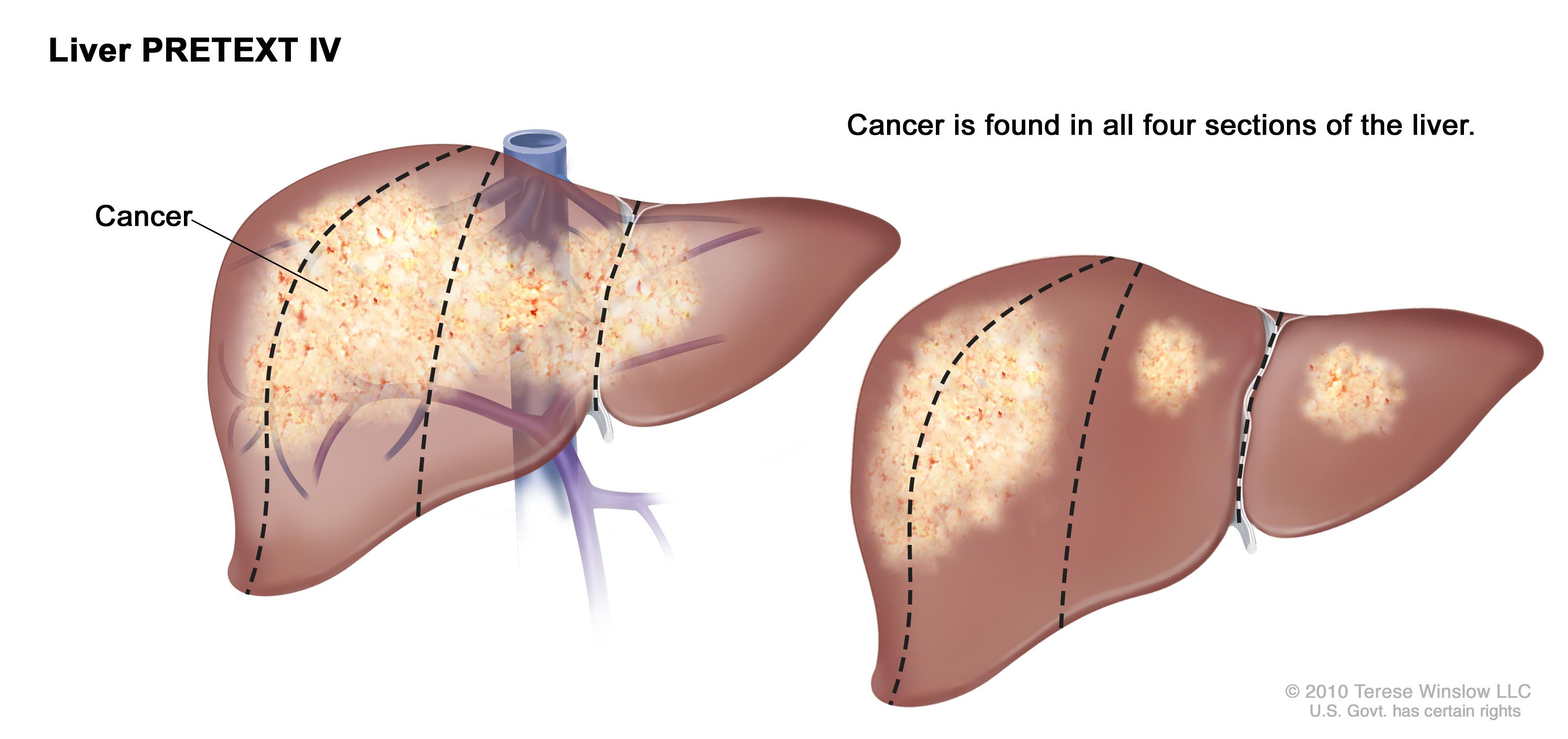 Childhood Liver Cancer Symptoms Tests Prognosis And Stages Pdq