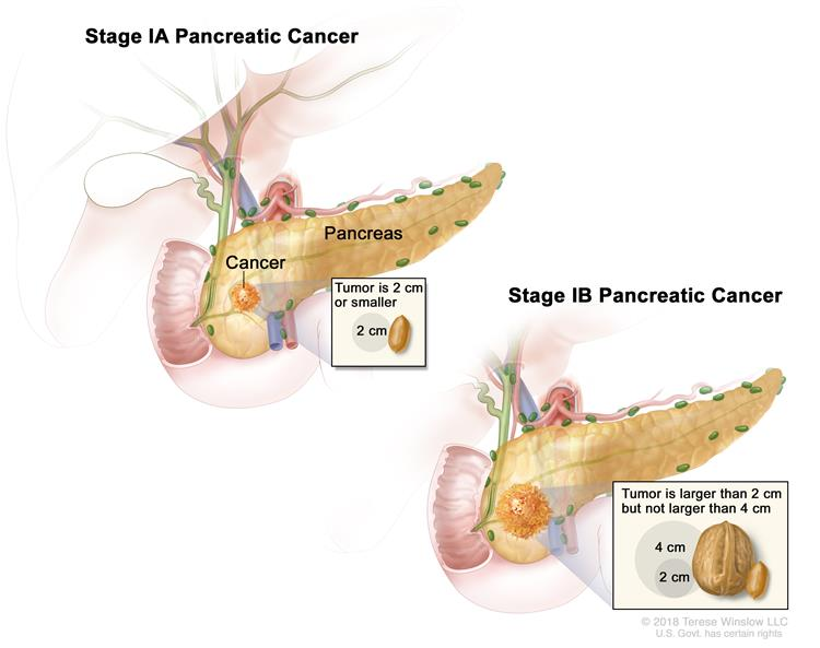 Stage I pancreatic cancer; drawing on the left shows that stage IA pancreatic cancer is smaller than 2 centimeters. The drawing on the right shows that stage IB pancreatic cancer is larger than 2 centimeters. An inset shows that a 2 centimeter tumor is about the size of a peanut. The duodenum is also shown.