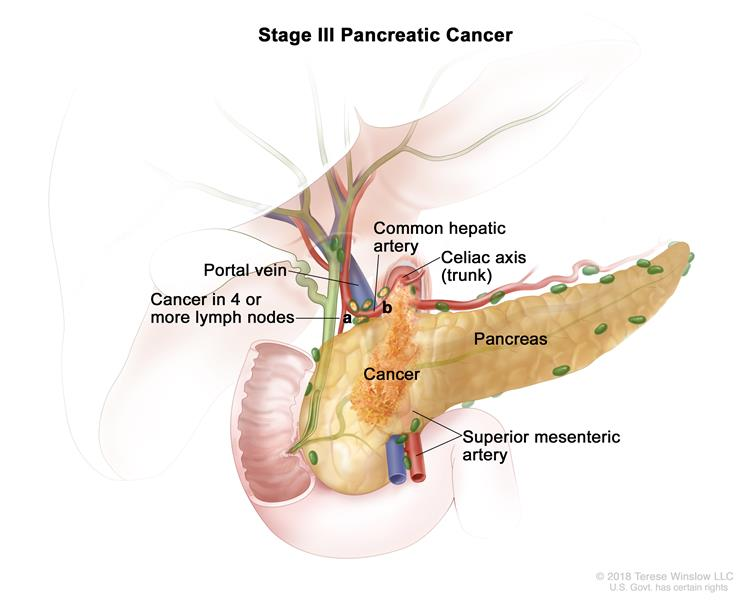 pancreatic cancer treatment (pdq®)—patient version - national, Human Body