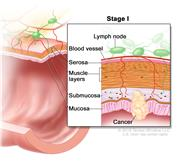 Stage I colorectal cancer; shows a cross-section of the colon/rectum. An inset shows the layers of the colon/rectum wall with cancer in the mucosa, submucosa, and muscle layers. Also shown are the serosa, a blood vessel, and lymph nodes.