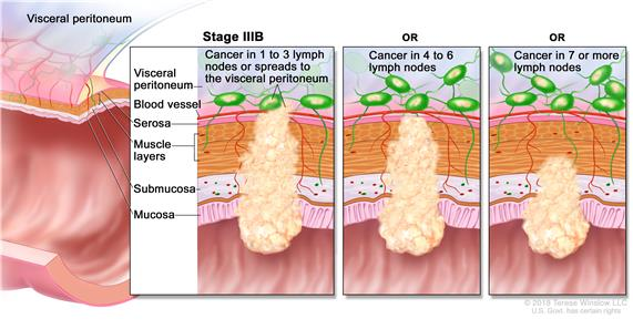 Stage IIIB colorectal cancer; shows a cross-section of the colon/rectum and a two-panel inset. Each panel shows the layers of the colon/rectum wall: mucosa, submucosa, muscle layers, and serosa. Also shown are a blood vessel and lymph nodes. First panel shows cancer in all layers, spreading through the serosa, and in 3 lymph nodes. Second panel shows cancer in all layers and in 5 lymph nodes. Third panel shows cancer in the mucosa, submucosa, muscle layers, and 7 lymph nodes.
