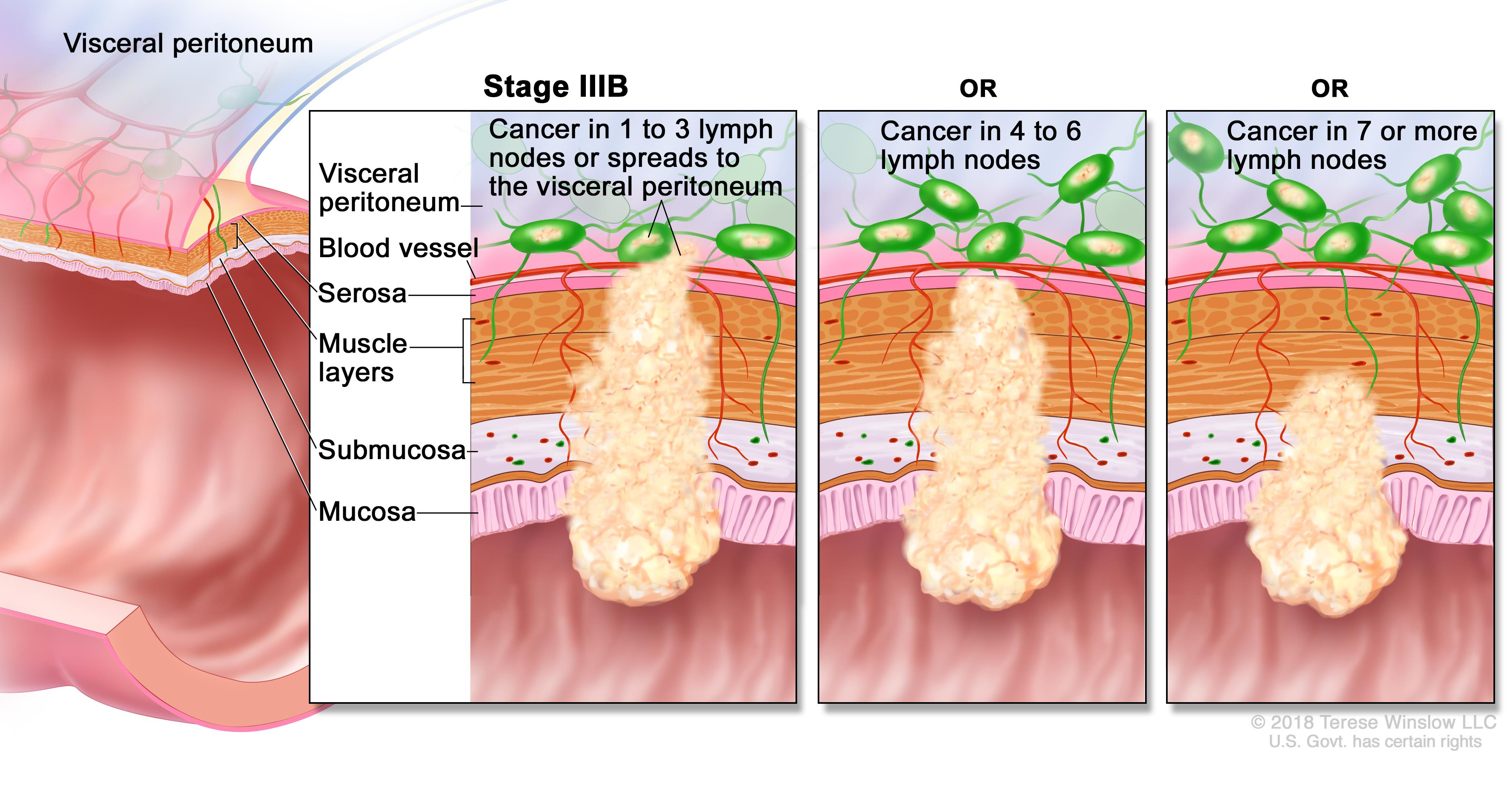 stages of cervical cancer Staging cervical cancer once cervical cancer is diagnosed, the stage of the cancer is determined cervical cancer staging is based on physical examination and diagnostic tests (eg, colposcopy, cystoscopy, proctoscopy.