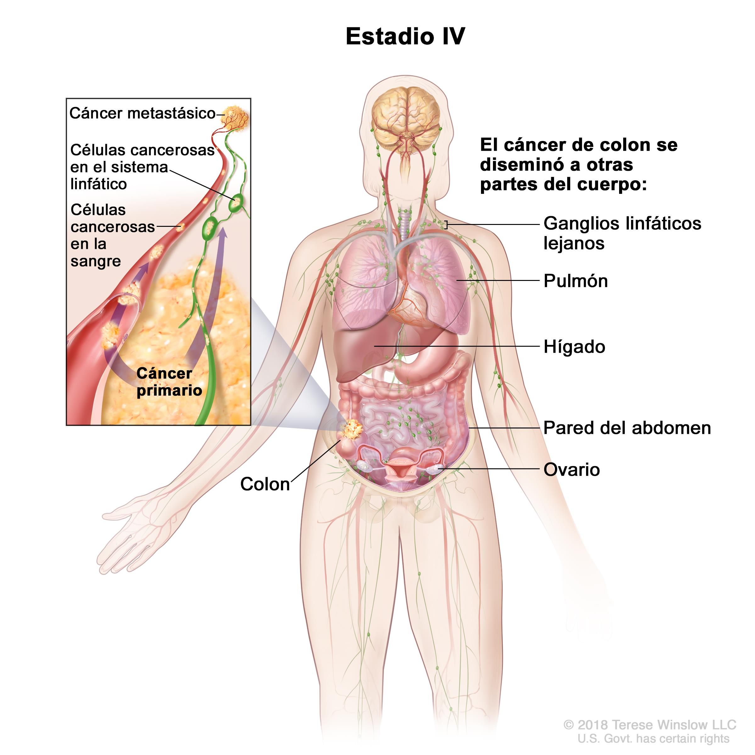 Cáncer de colon (PDQ®)—Versión para pacientes - National Cancer ...