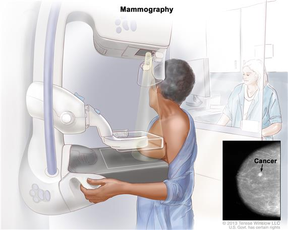 FDA says thermography no substitute for mammograms