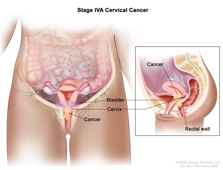 Stage IVA cervical cancer; drawing and inset show that cancer has spread from the cervix to the bladder and rectal wall.