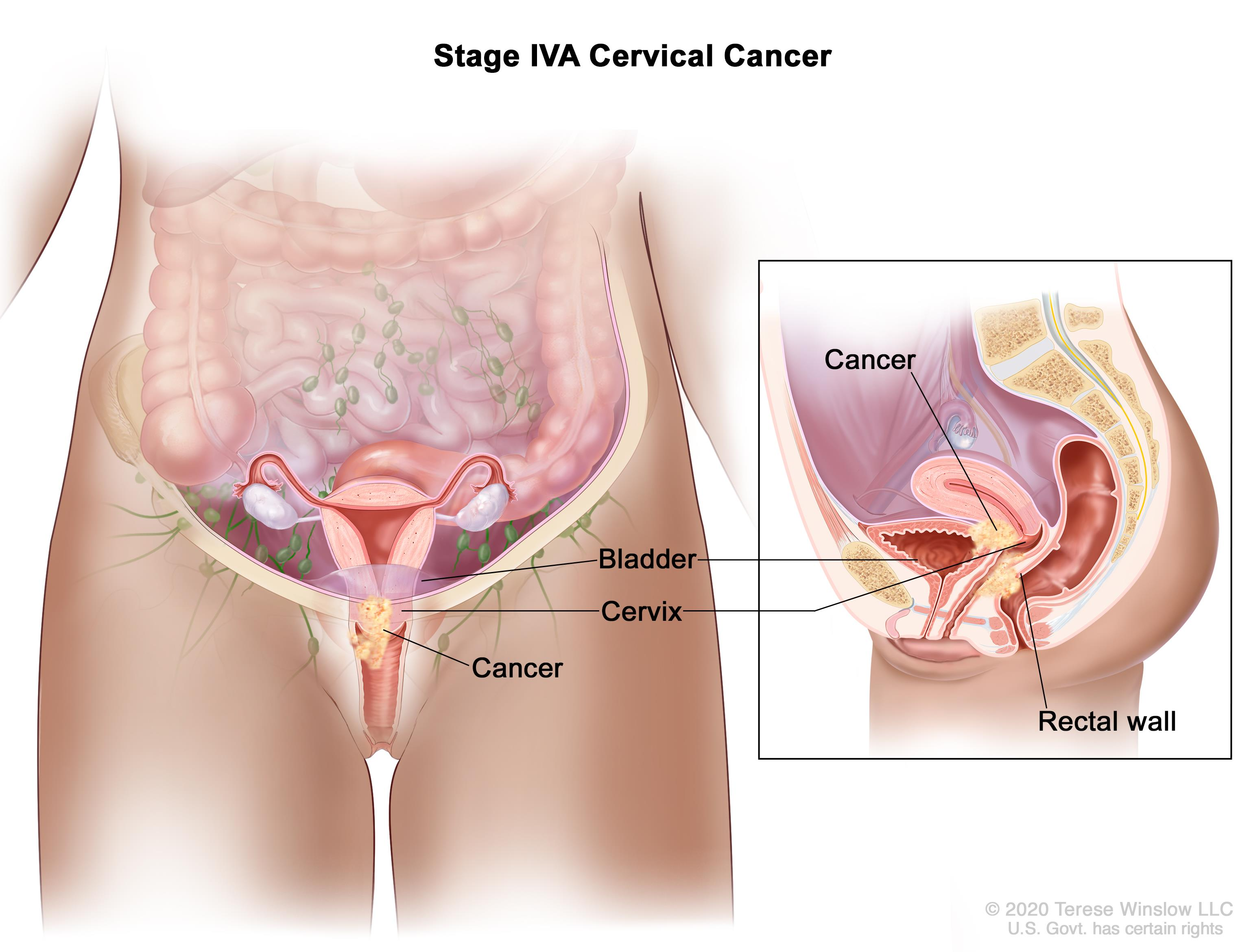 Cervical Cancer Treatment Pdq 174 Patient Version