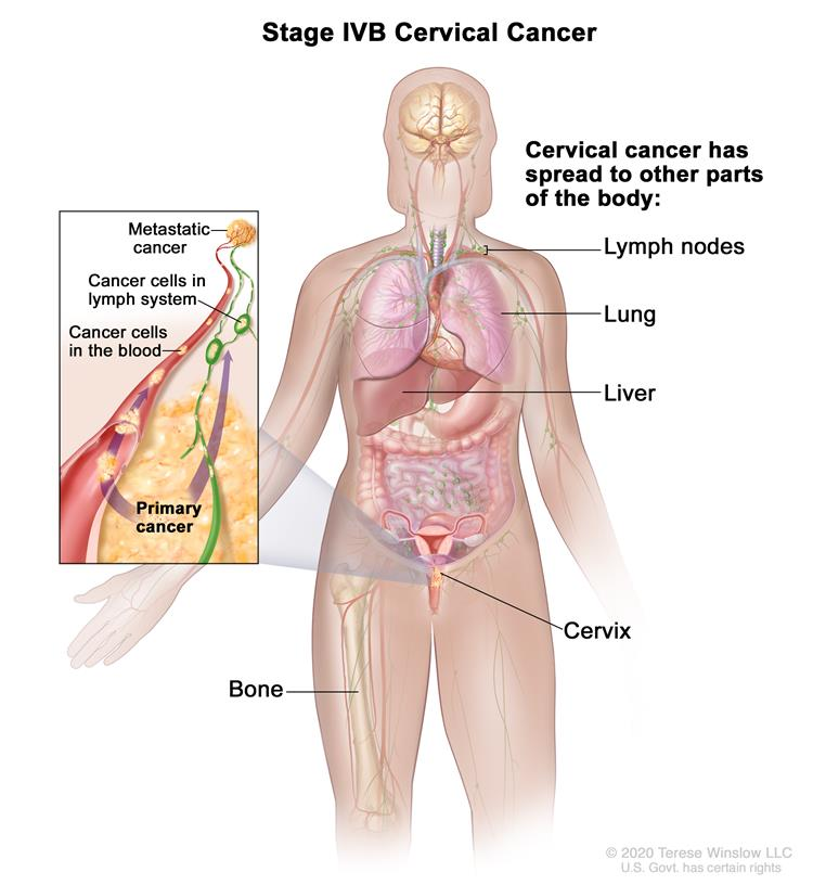 Stage IVB cervical cancer; drawing shows other parts of the body where cervical cancer may spread, including the lymph nodes, lung, liver, intestinal tract, abdominal wall, and bone. An inset shows cancer cells spreading from the primary cancer, through the blood and lymph system,  to another part of the body where metastatic cancer has formed.
