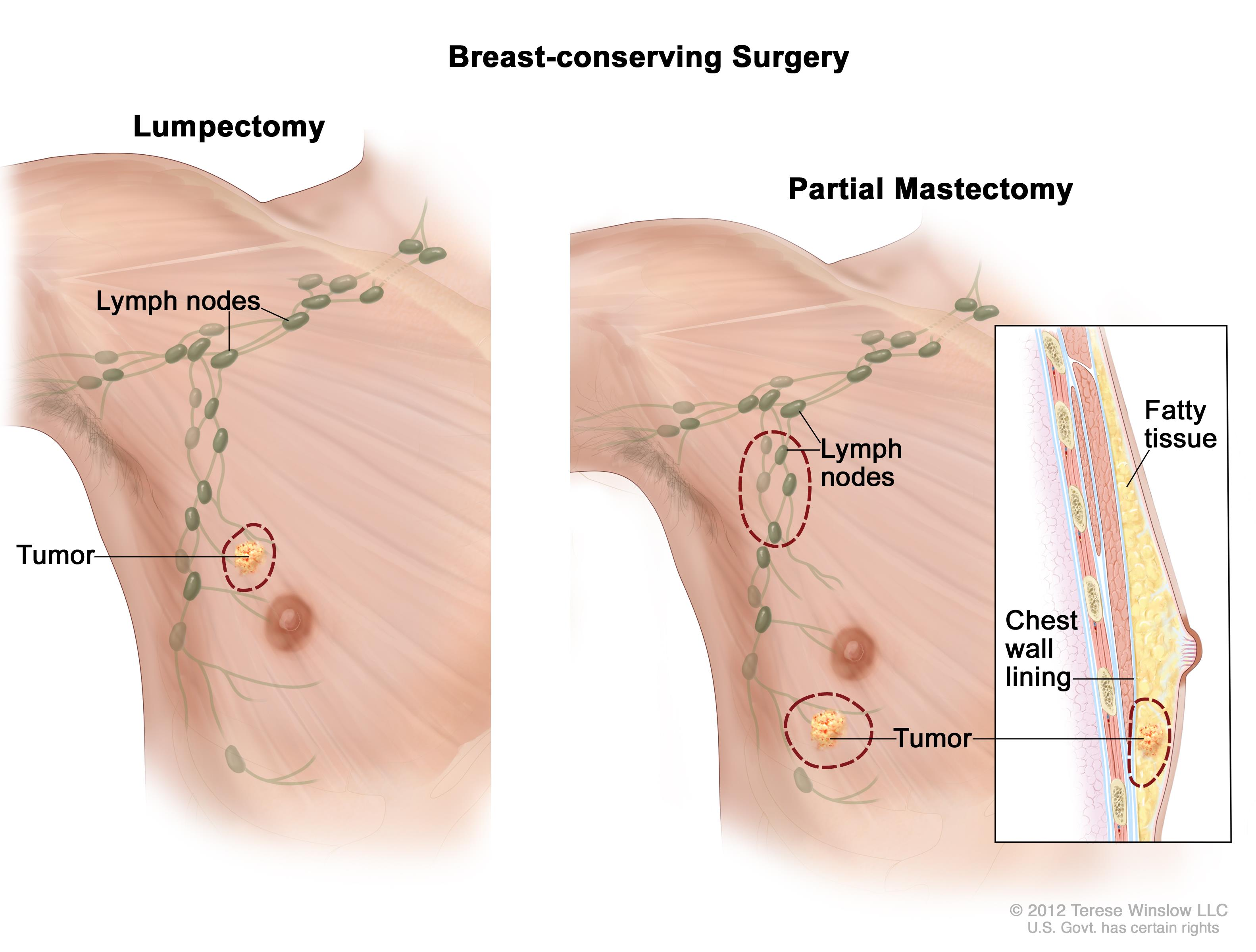 Chest wall breast cancer