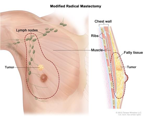 Modified radical mastectomy. The drawing on the left shows the removal