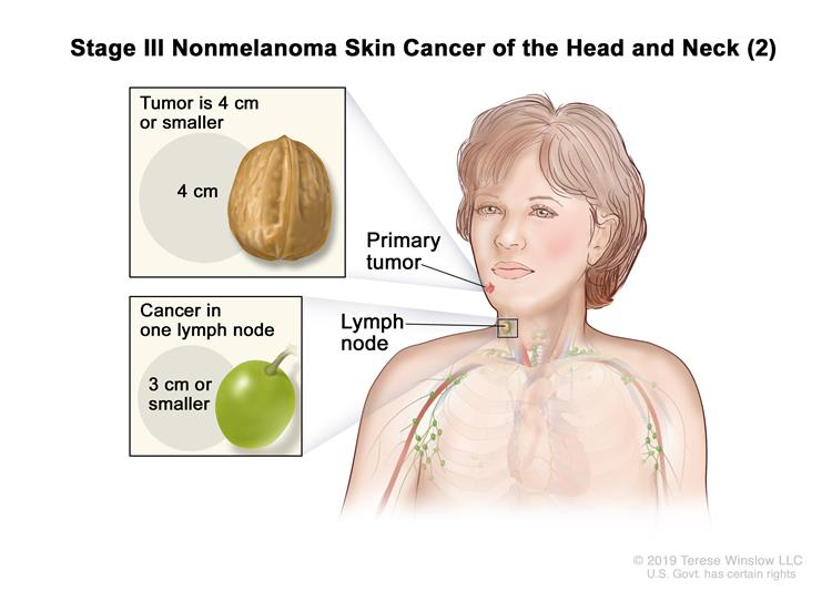 Stage III nonmelanoma skin cancer (2); drawing shows a primary tumor in one arm and cancer in a lymph node on the same side of the body as the primary tumor. Insets show 2 centimeters is about the size of a peanut and 3 centimeters is about the size of a grape.