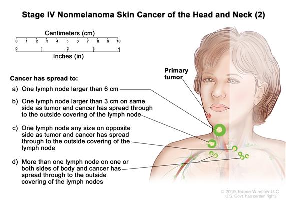 Stage IV nonmelanoma skin cancer (2); drawing shows a primary tumor in one arm and parts of the body where it may spread, such as the ribs, base of skull, spine, or lung. An inset shows cancer spreading through the blood and lymph nodes to other parts of the body.