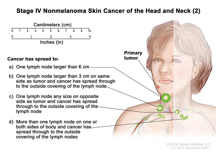 Skin Cancer Types Symptoms Information Dana Farber Cancer