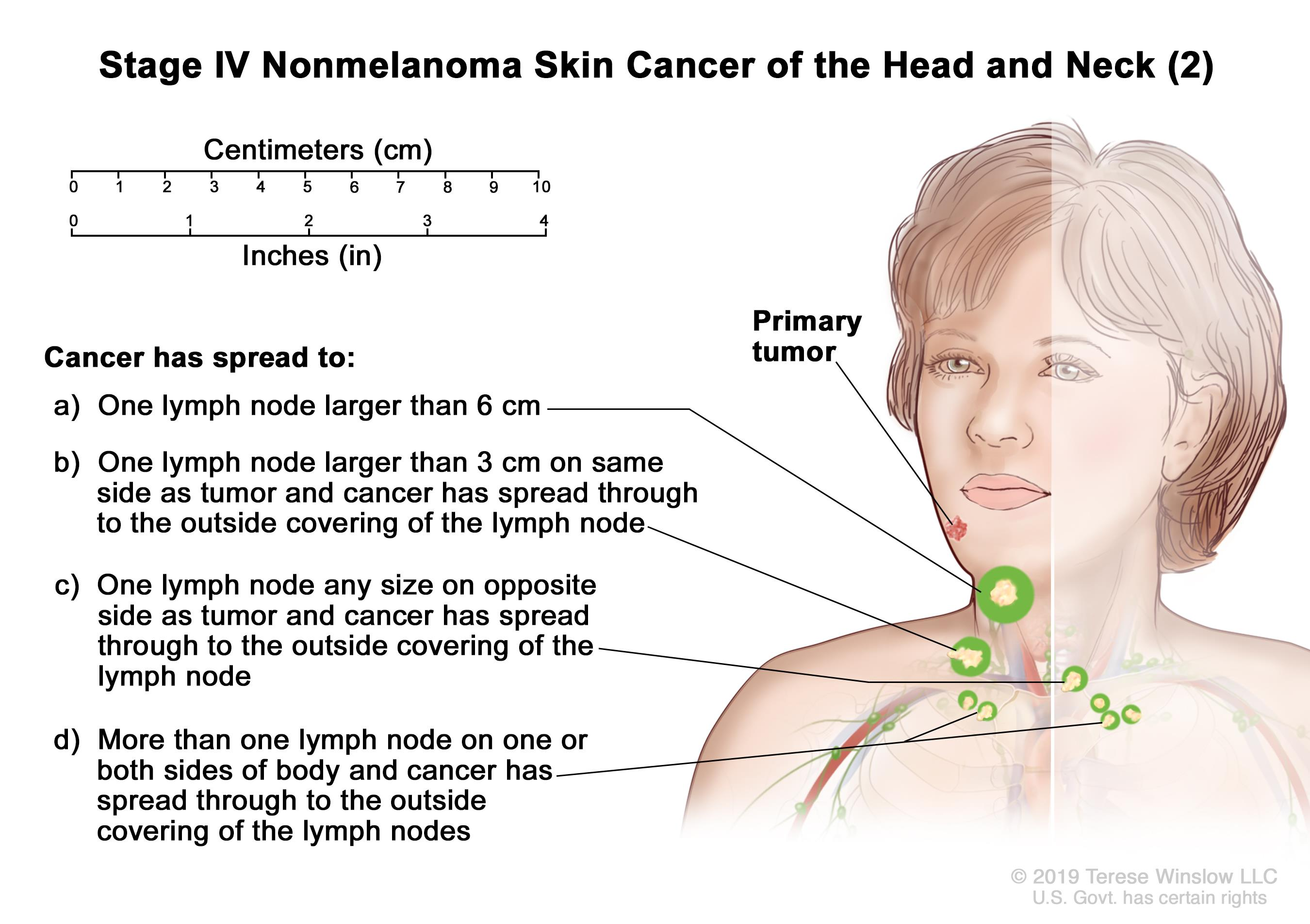 Stage IV nonmelanoma skin cancer of the head and neck (2); drawing shows a primary tumor on the face and cancer that has spread to: (a) one lymph node that is larger than 6 centimeters; (b) one lymph node on the same side of the body as the tumor, the node is larger than 3 centimeters, and cancer has spread through to the outside covering of the lymph node; (c) one lymph node on the opposite side of the body as the tumor, the node is any size, and cancer has spread through to the outside covering of the lymph node; and (d) more than one lymph node on one or both sides of the body and cancer has spread through to the outside covering of the lymph nodes. Also shown is a 10-centimeter ruler and a 4-inch ruler.
