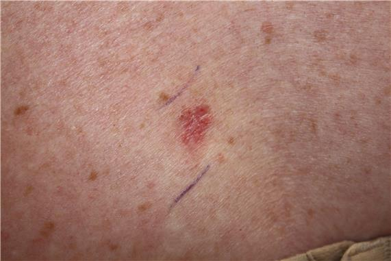 Photograph of a pink, scaly lesion on the skin.