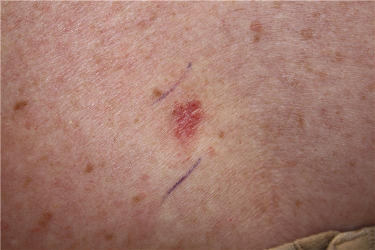 Photograph showing a skin cancer lesion that looks reddish brown and slightly raised.