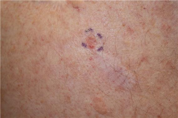Photograph of flesh-colored nodules on the skin.
