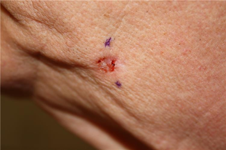 Photograph of a red, ulcerated lesion on the skin of the face.