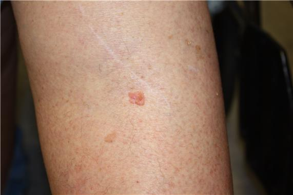 Photograph of a pink, raised lesion on the skin of the leg.
