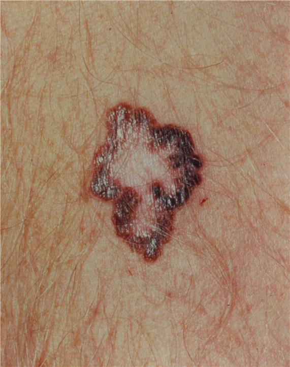 Photograph of a brown lesion with a large and irregular border on the skin.