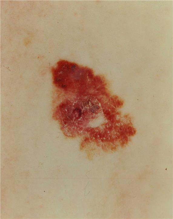 Photograph of a large, asymmetrical, red and brown lesion on the skin.