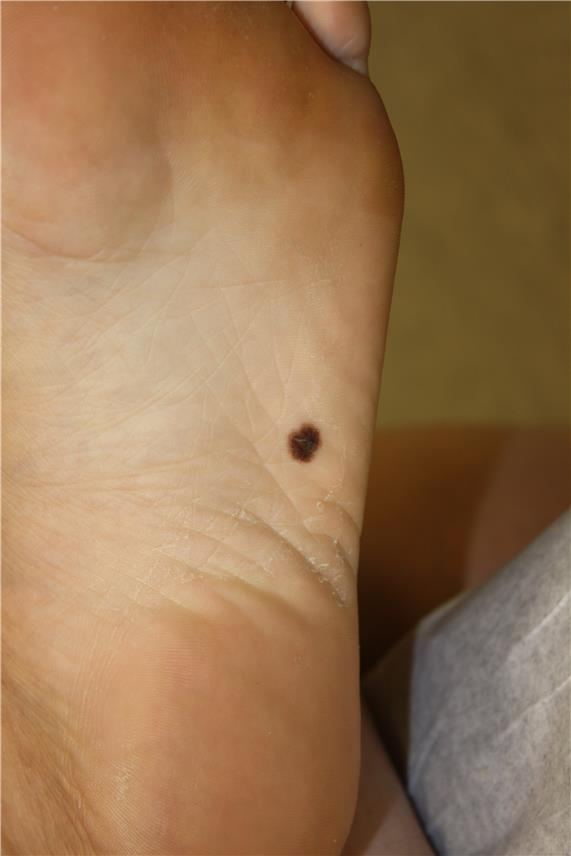 Photograph of an asymmetrical, brown lesion on the skin on the bottom of the foot.
