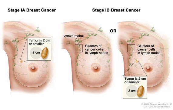 Stage I breast cancer. Drawing shows stage IA on the left; the tumor is 2 cm or smaller and has not spread outside the breast. Drawings in the middle and on the right show stage IB. In the middle, no tumor is found in the breast, but small clusters of cancer cells are found in the lymph nodes. In the drawing on the right, the tumor is 2 cm or smaller and small clusters of cancer cells are found in the lymph nodes.