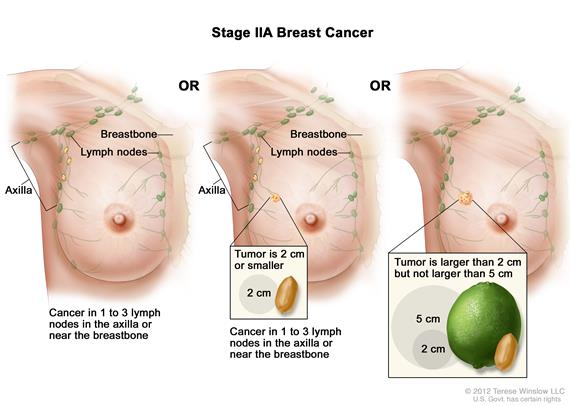 Stage IIA breast cancer. Drawing on the left shows no tumor in the breast, but cancer is found in 3 axillary lymph nodes. Drawing in the middle shows the tumor size is 2 cm or smaller and cancer is found in 3 axillary lymph nodes. Drawing on the right shows the tumor is larger than 2 cm but not larger than 5 cm and has not spread to the lymph nodes.