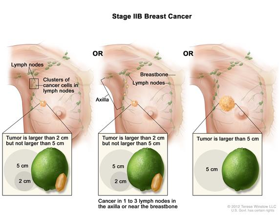 Stage IIB breast cancer. The drawing on the left shows the tumor is larger than 2 cm but not larger than 5 cm and small clusters of cancer cells are in the lymph nodes. The drawing in the middle shows the tumor is larger than 2 centimeters but not larger than 5 centimeters and cancer is in 3 axillary lymph nodes. The drawing on the right shows the tumor is larger than 5 cm but has not spread to the lymph nodes.