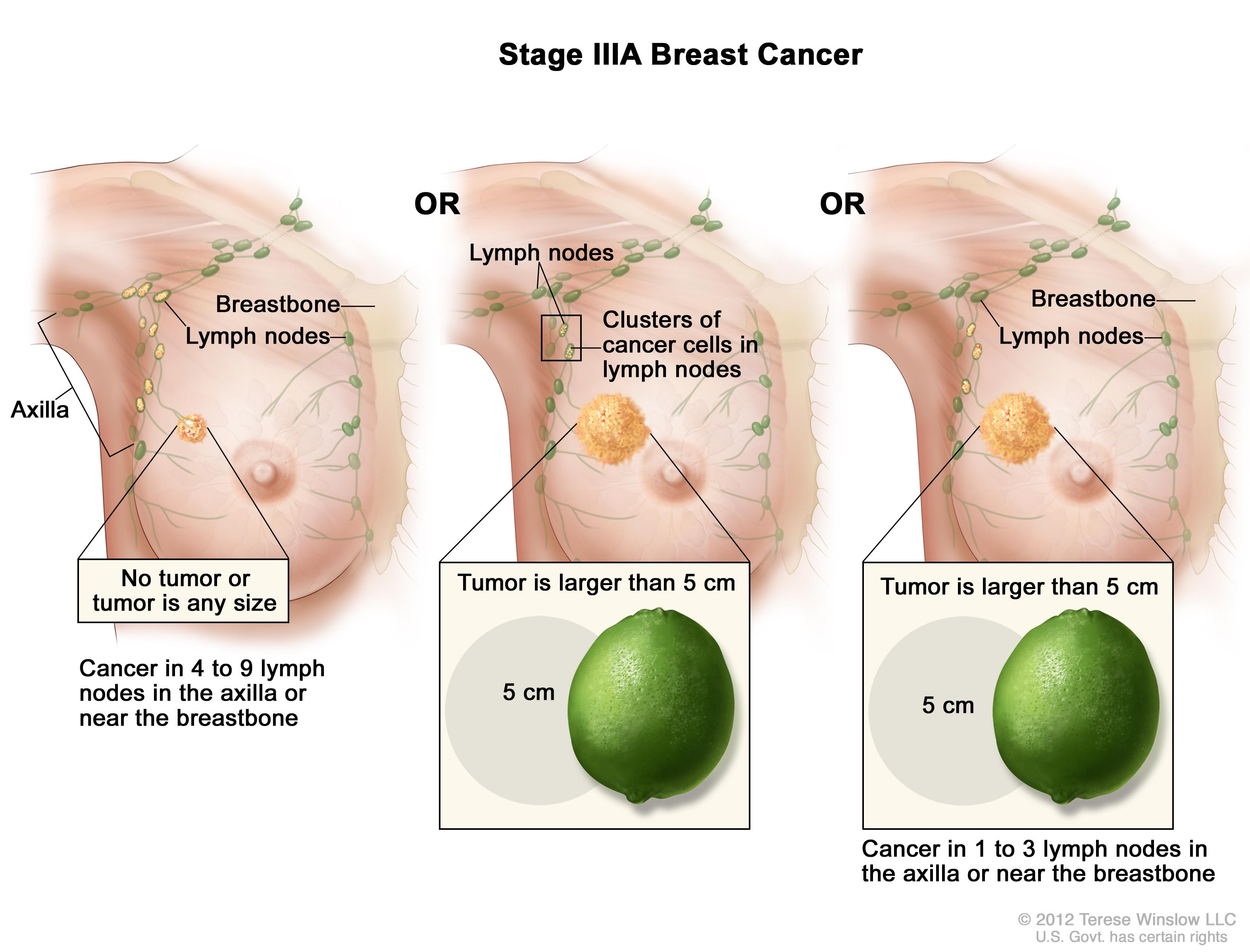 Stage IIIA breast cancer. The drawing on the left shows no tumor in the breast; cancer is found in 8 axillary lymph nodes. The drawing in the middle shows the tumor is larger than 5 cm and small clusters of cancer cells are in the lymph nodes. The drawing on the right shows the tumor is larger than 5 cm and cancer is in 3 axillary lymph nodes.