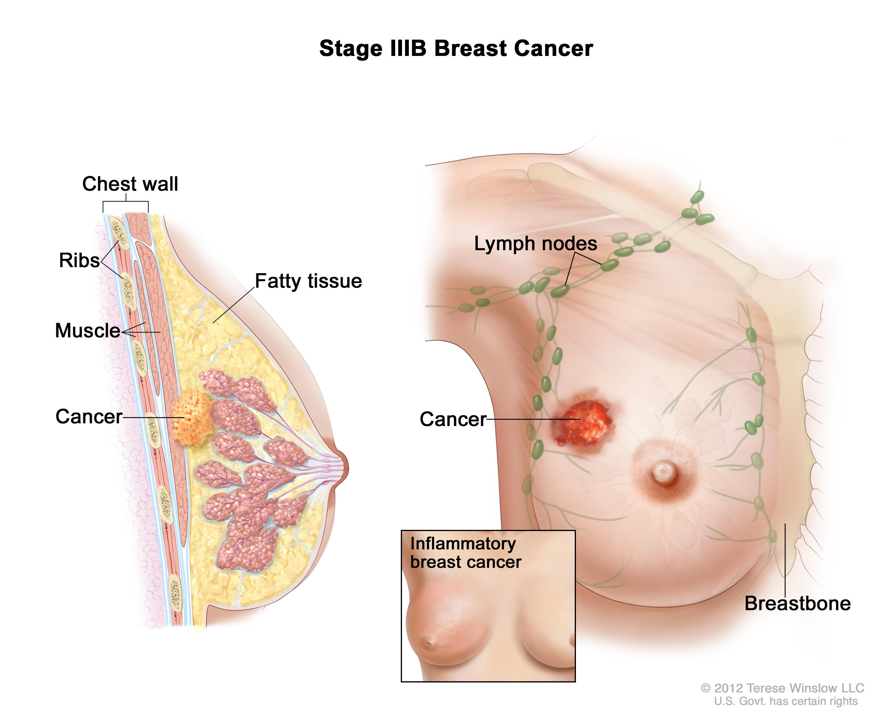 Breast cancer treatment pdq patient version national for Define mural nodule