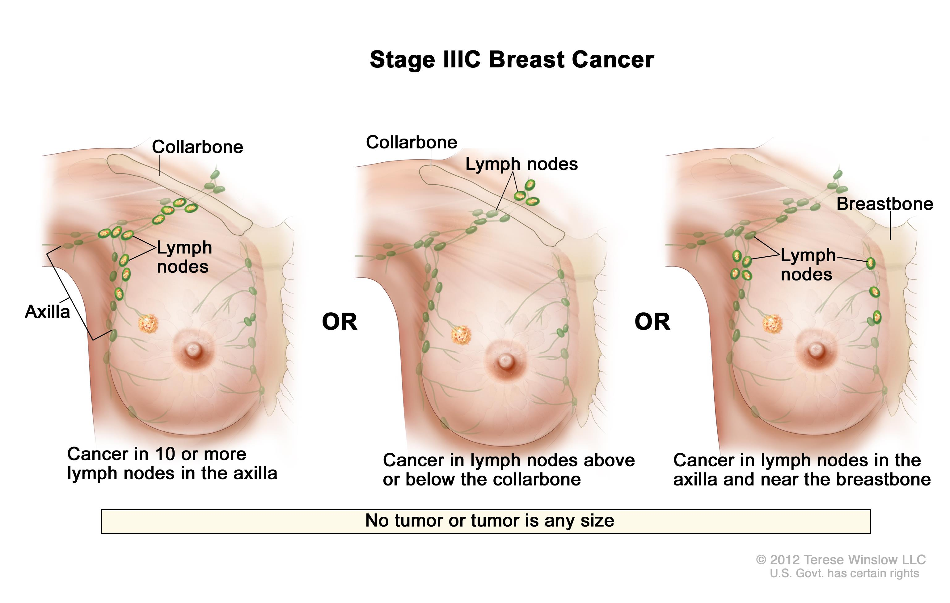 Stage IIIC breast cancer. The drawing on the left shows cancer in lymph nodes in the axilla. The drawing in the middle shows cancer in lymph nodes above the collarbone. The drawing on the right shows cancer in lymph nodes in the axilla and in lymph nodes near the breastbone.