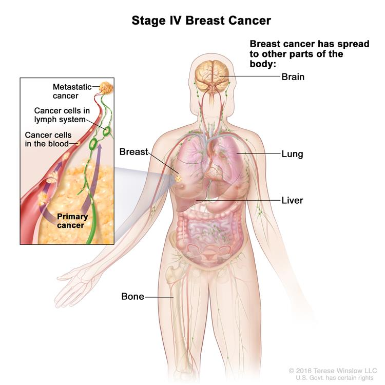 Stage IV breast cancer. Drawing shows cancer has spread from lymph nodes through the blood to other parts of the body, such as the brain, lungs, liver, and bone.