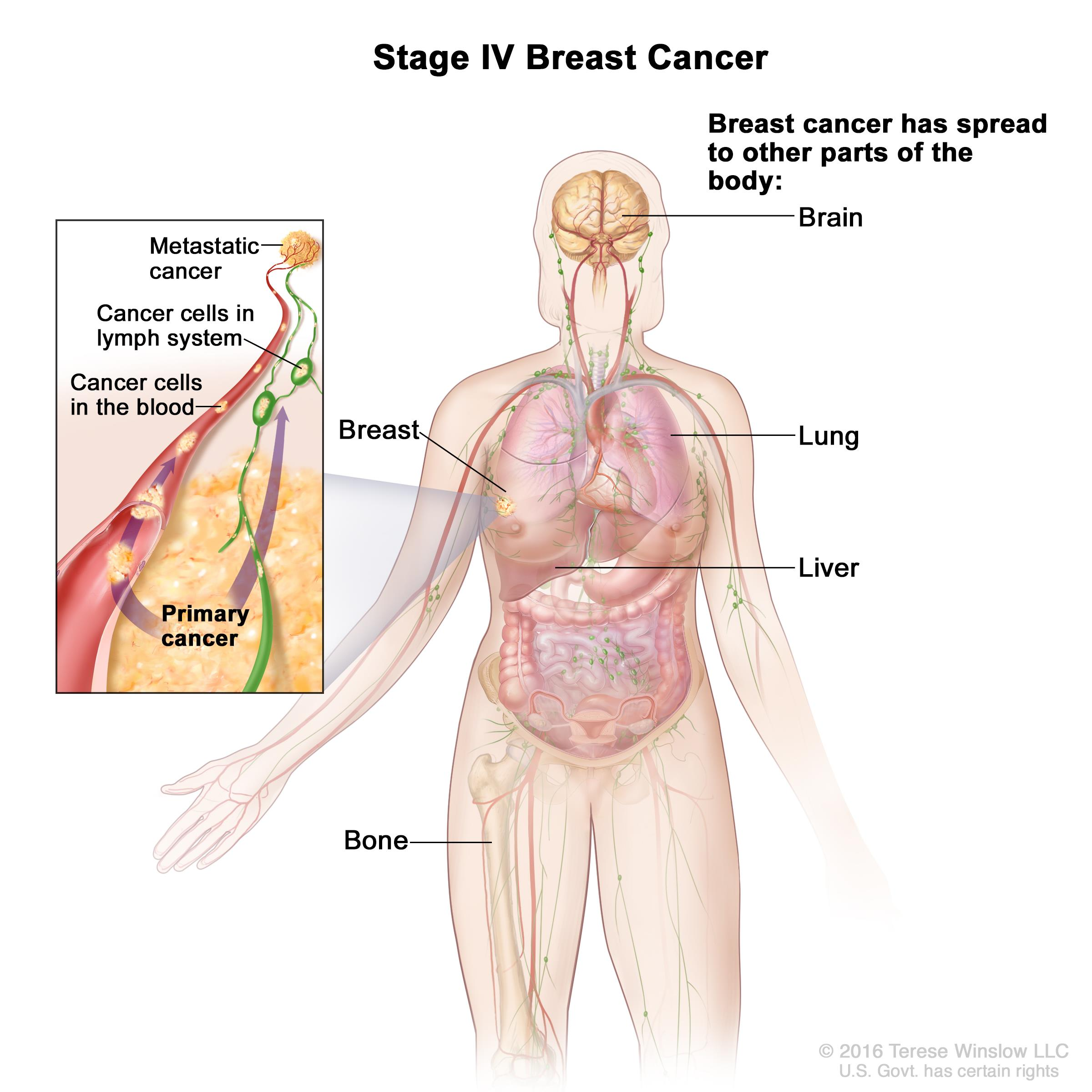 Stage IV breast cancer; drawing shows other parts of the body where breast cancer may spread, including the brain, lung, liver, and bone. An inset shows cancer cells spreading from the breast, through the blood and lymph system, to another part of the body where metastatic cancer has formed.
