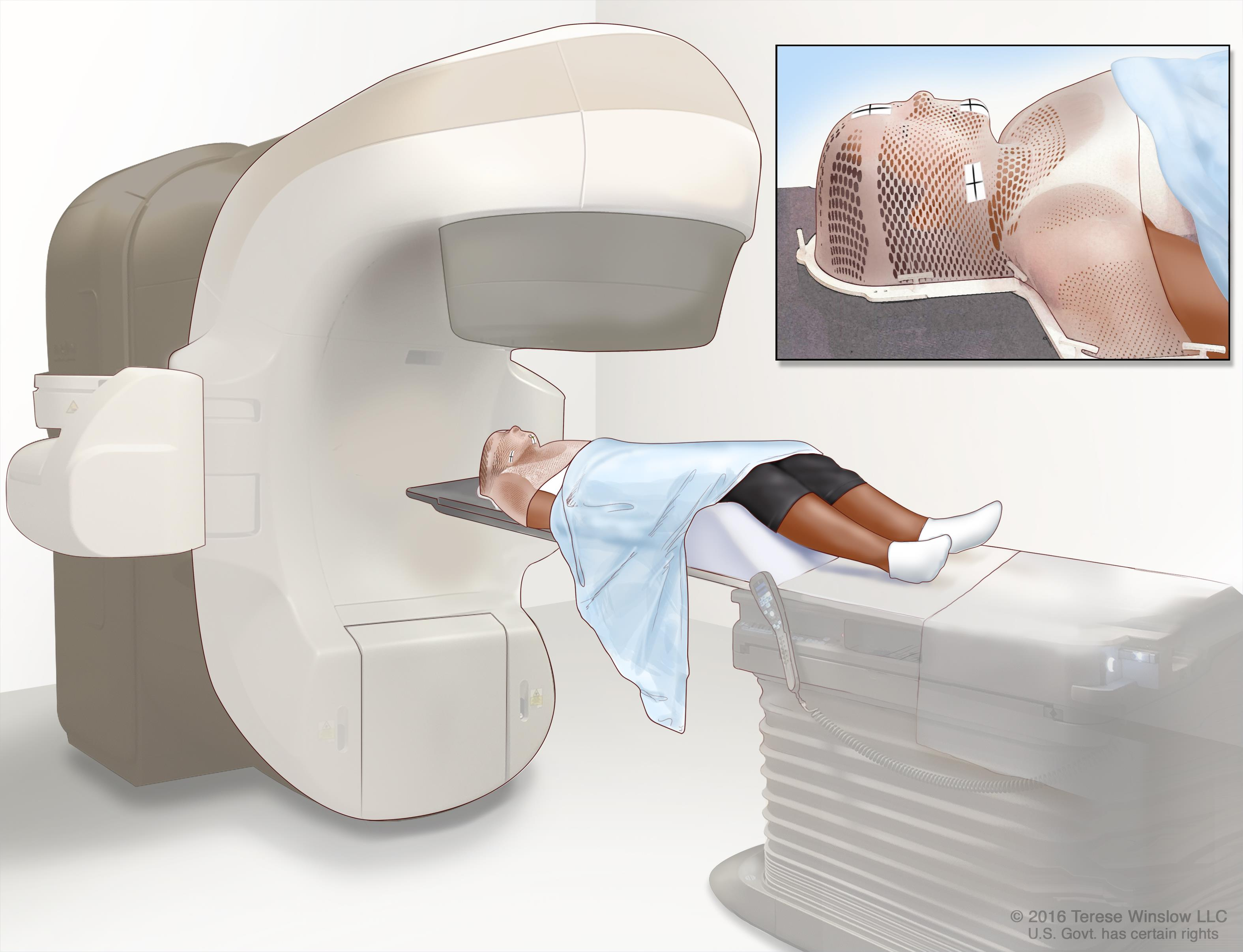 machine used for radiation therapy